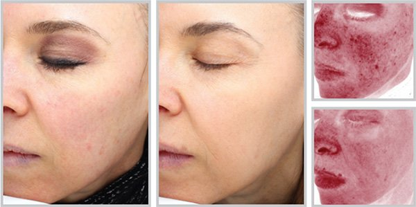 halo™ Hybrid Fractional Laser Treatment In Maryland